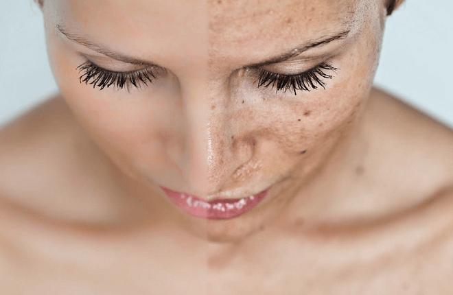 нарушении пигментации кожи