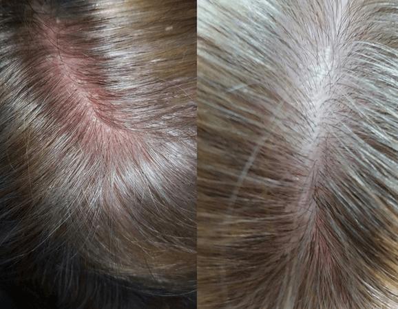 покраснение кожи головы